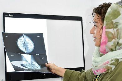niloo-mamography-e1598783762703.jpg